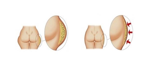 Liposcultura Ultrasuoni